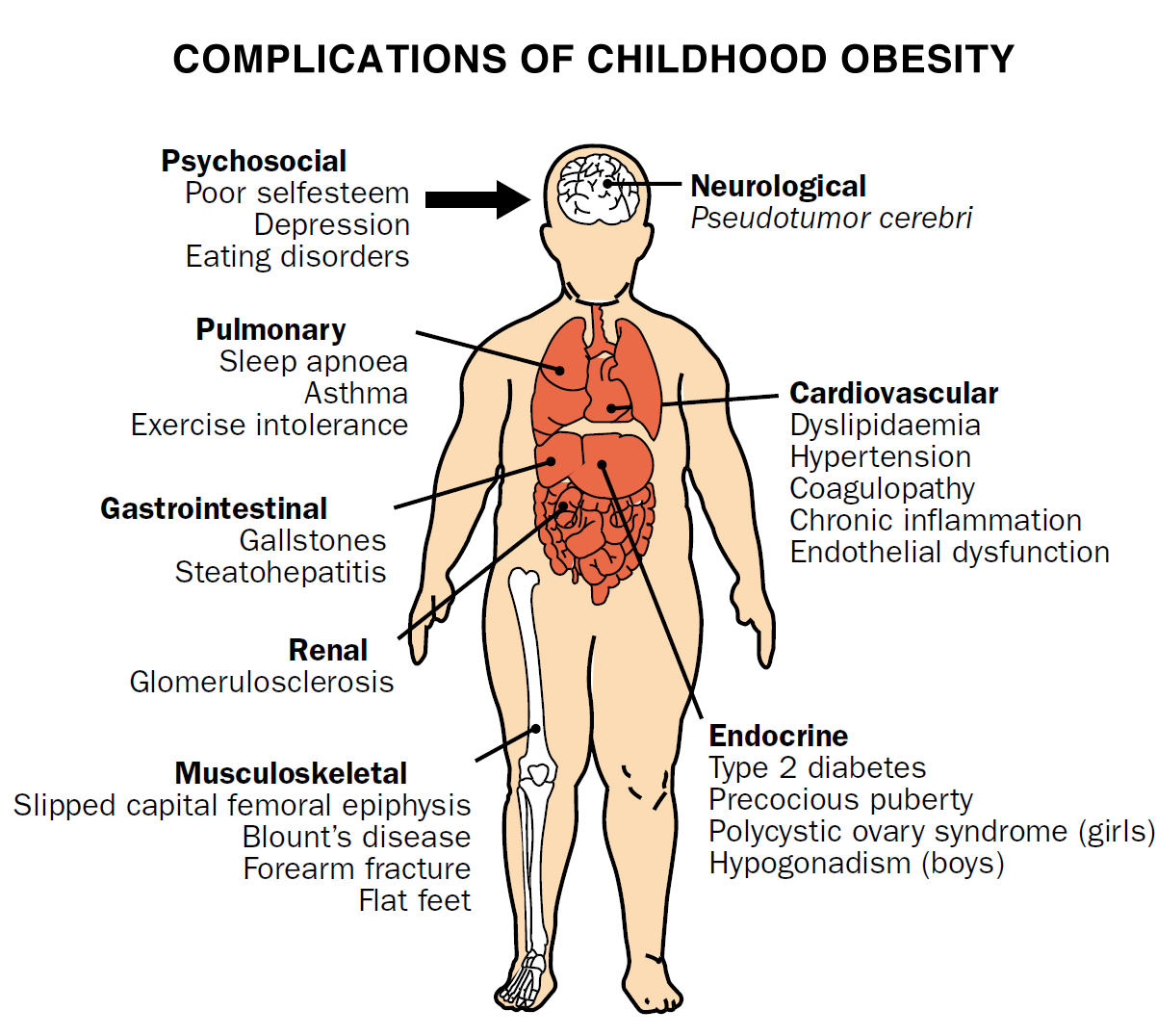 childhood obesity and the effects of the increase weight on the health and physical body of a child